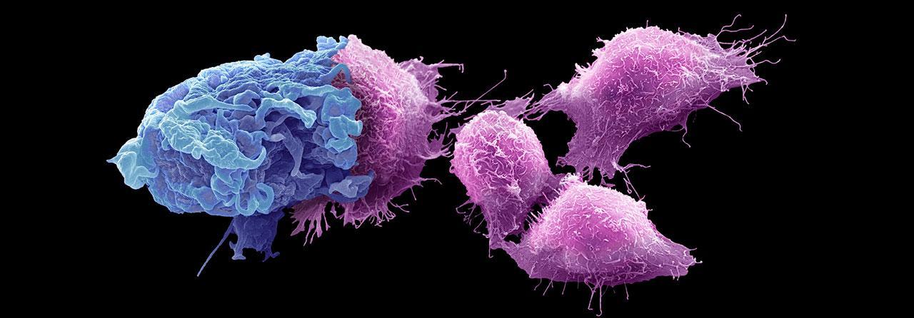 Ako funguje imunita, čo má spoločné s rakovinou a ako súvisí s hygienou a alergiami?